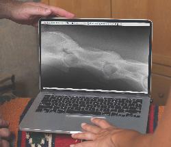 cervical radiograph